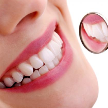 Hogyan mossunk fogat? A fogmosás helyes technikája