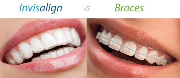 Invisalign átlátszó fogszabályozás