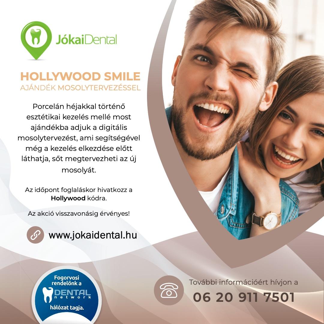 Hollywood smile | Ajándék mosolytervezés