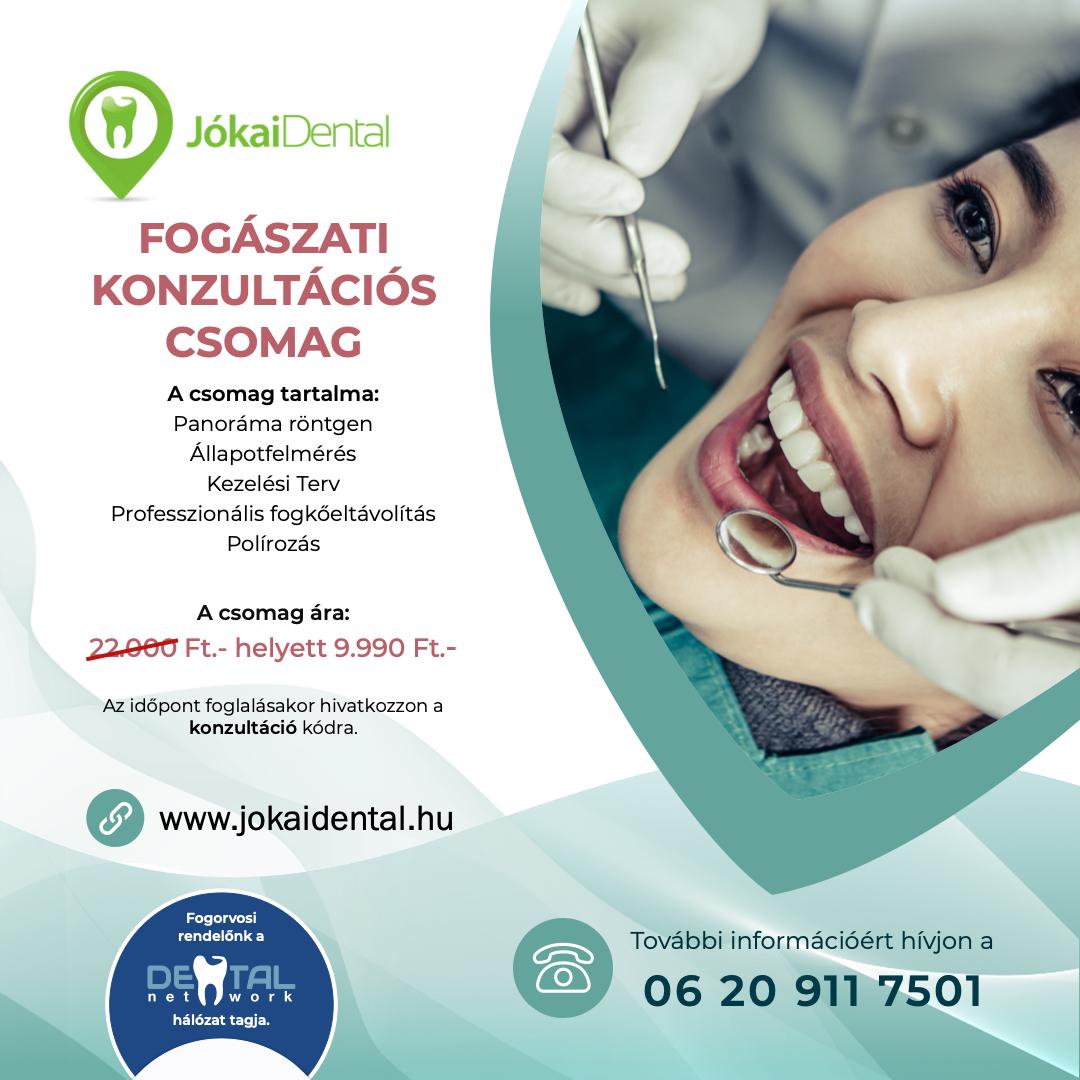 Fogászati konzultációs csomag - Jókai Dental Fogászat Budapest
