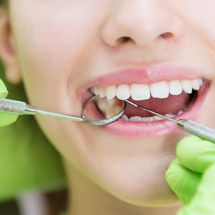 Öt hasznos tipp, hogy megtaláld az igazit! Így válassz fogorvost!