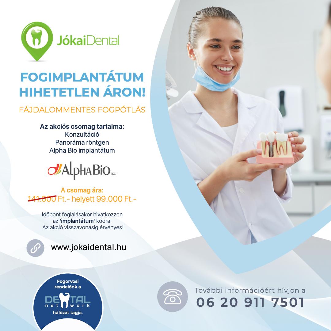 Jókai Dental Fogászat - Fogimplantátum HIHETETLEN áron!